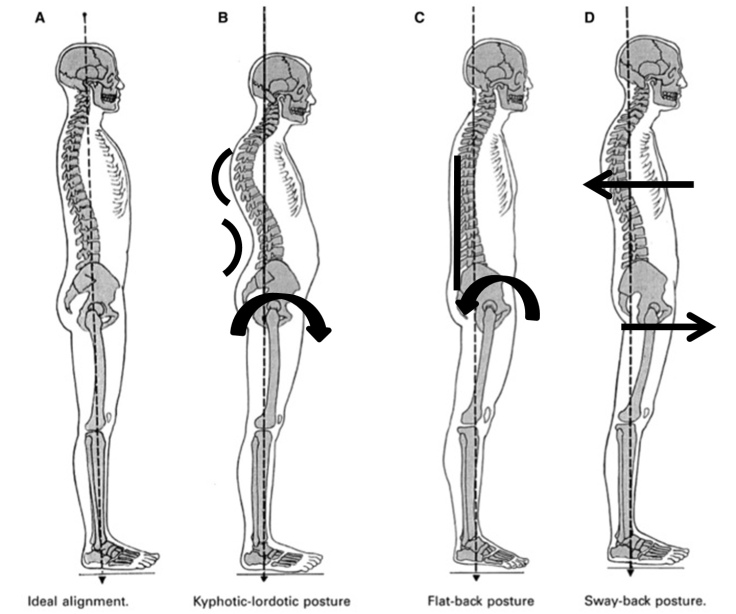 how-your-posture-can-effect-your-spine.jpg